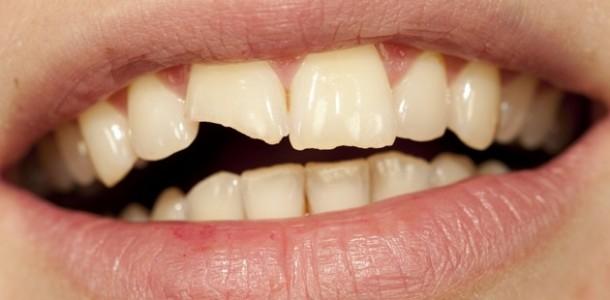 significado-de-sonhar-com-dente-quebrado