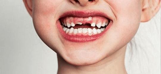 significado de sonhar com dente podre