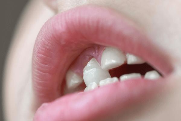sonhar com dente caindo