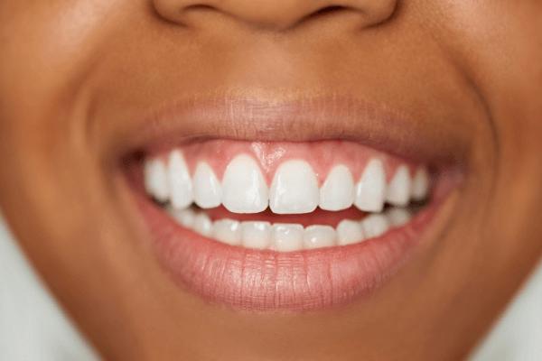 Sonhar com dentes brancos e limpos